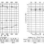 How to read an Audiogram (1)の詳細へ